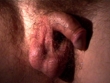 soft scrotum